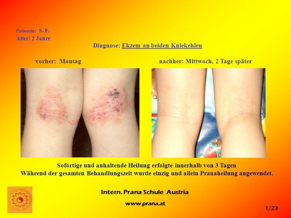 Diagnose: Ekzem an beiden Kniekehlen