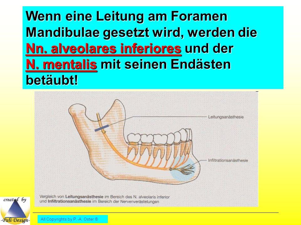 Wenn eine Leitung am Foramen Mandibulae gesetzt wird, werden die Nn