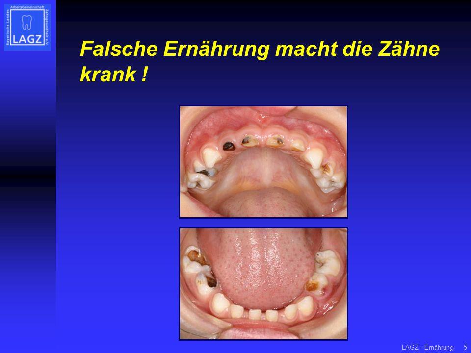Falsche Ernährung macht die Zähne krank !