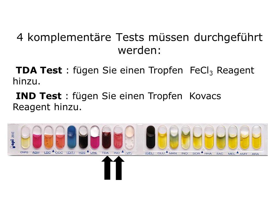 4 komplementäre Tests müssen durchgeführt werden: