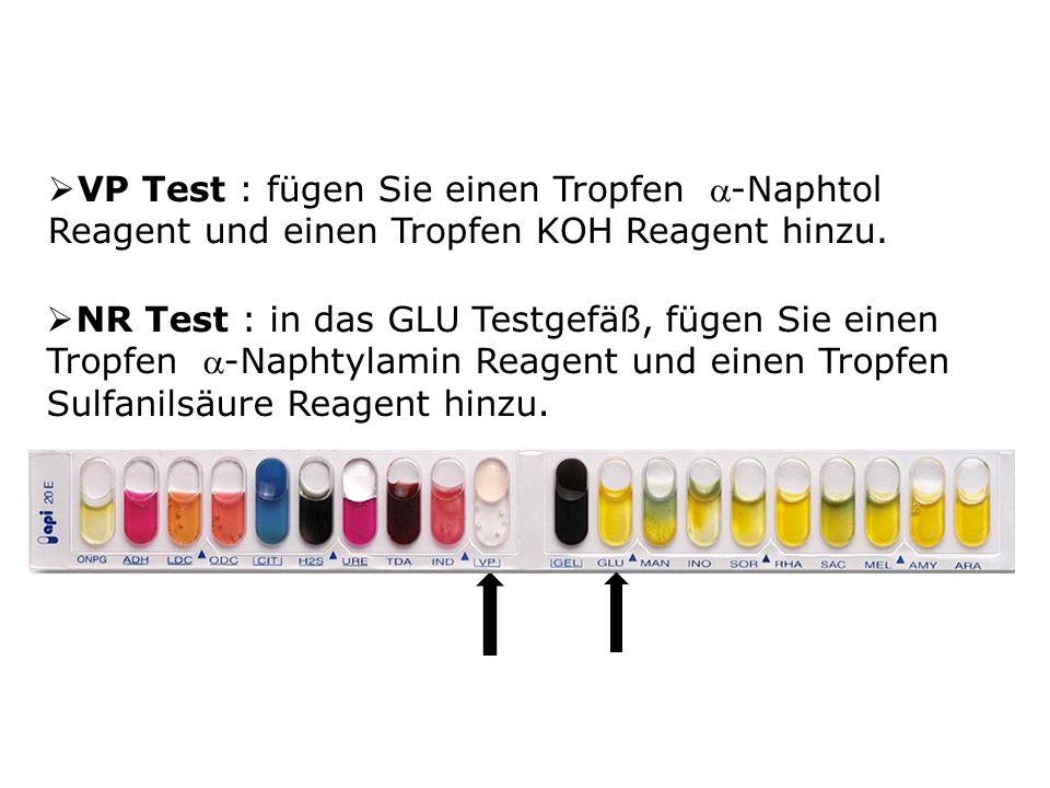 VP Test : fügen Sie einen Tropfen -Naphtol Reagent und einen Tropfen KOH Reagent hinzu.