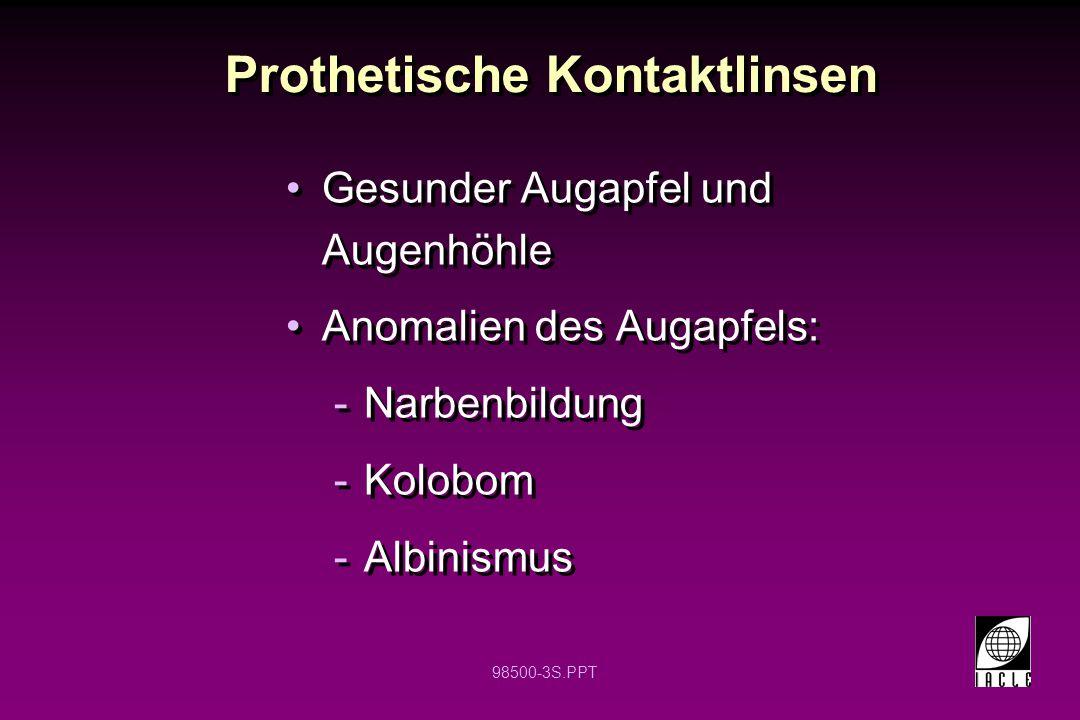 Prothetische Kontaktlinsen