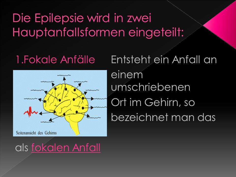Die Epilepsie wird in zwei Hauptanfallsformen eingeteilt: