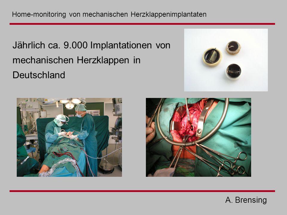 Jährlich ca. 9.000 Implantationen von