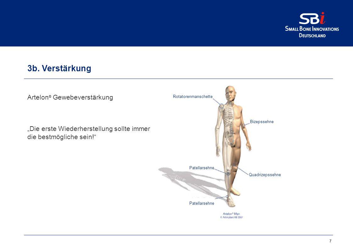 3a. Wiederherstellung Artelon® Spacers anatomieerhaltend