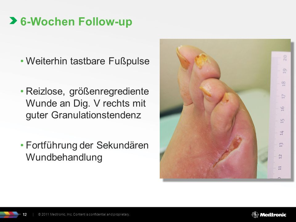 6-Wochen Follow-up Weiterhin tastbare Fußpulse