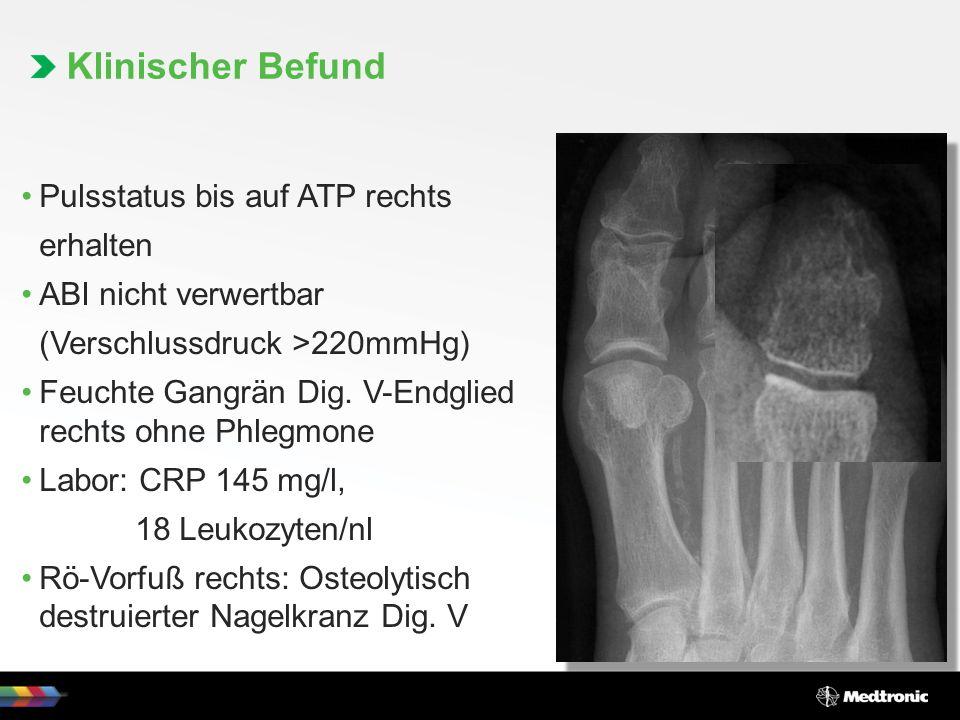 Klinischer Befund Pulsstatus bis auf ATP rechts erhalten