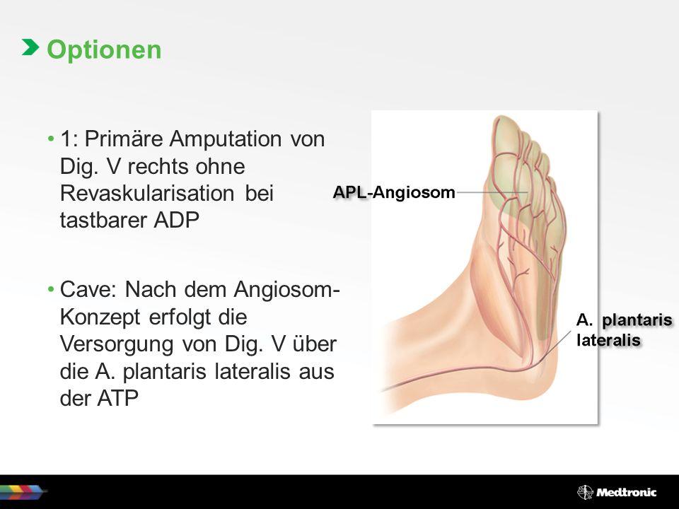 Optionen 1: Primäre Amputation von Dig. V rechts ohne Revaskularisation bei tastbarer ADP.