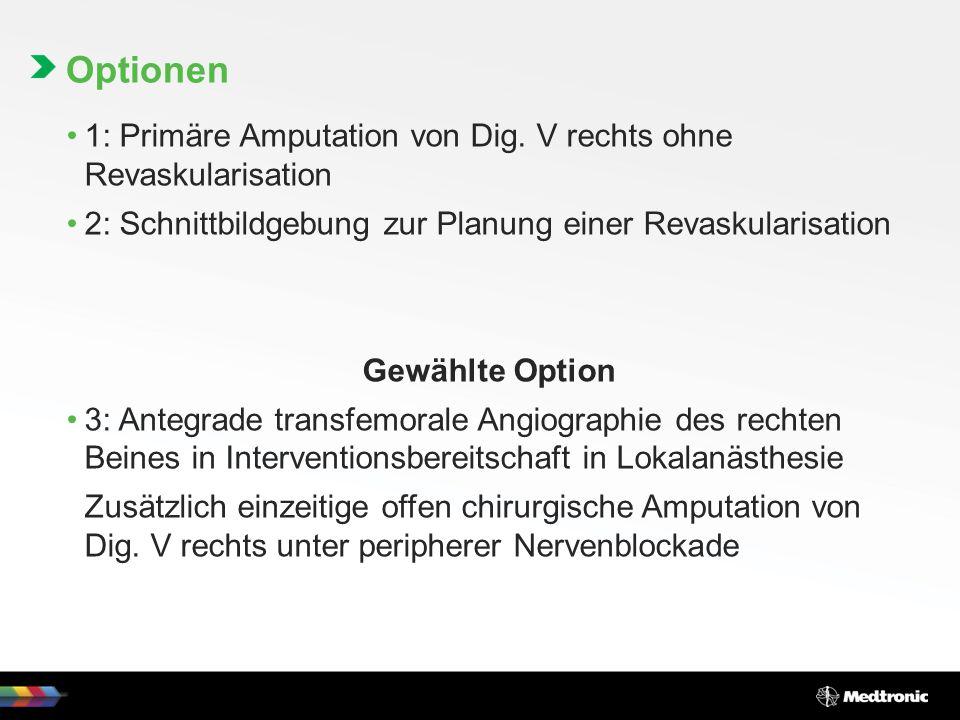 Optionen 1: Primäre Amputation von Dig. V rechts ohne Revaskularisation. 2: Schnittbildgebung zur Planung einer Revaskularisation.