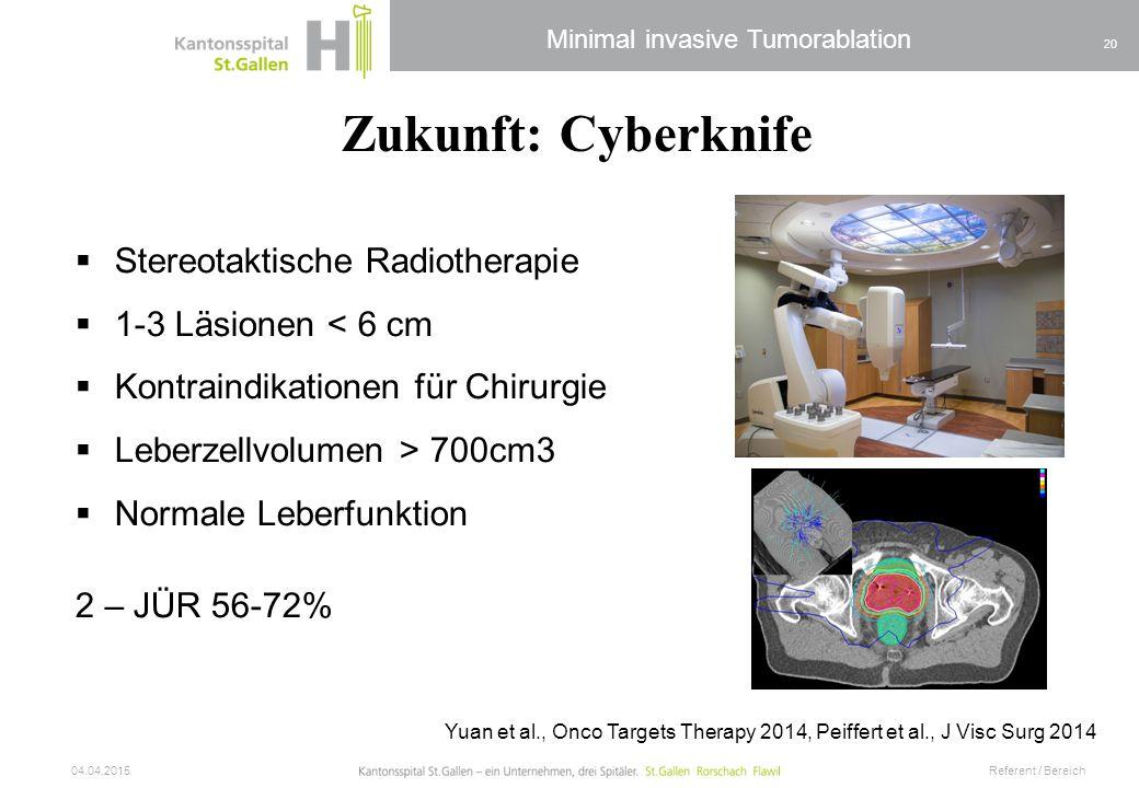 Zukunft: Cyberknife Stereotaktische Radiotherapie