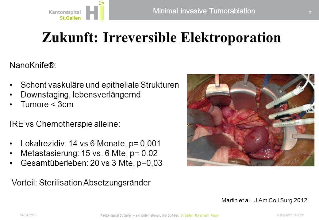Zukunft: Irreversible Elektroporation