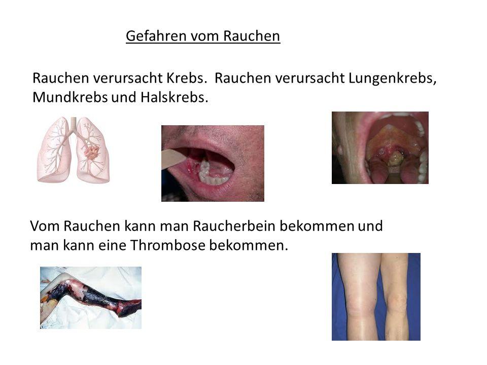Gefahren vom Rauchen Rauchen verursacht Krebs. Rauchen verursacht Lungenkrebs, Mundkrebs und Halskrebs.