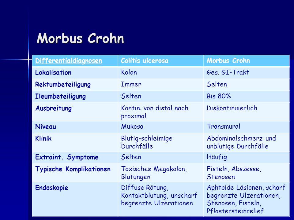 Morbus Crohn Differentialdiagnosen Colitis ulcerosa Morbus Crohn