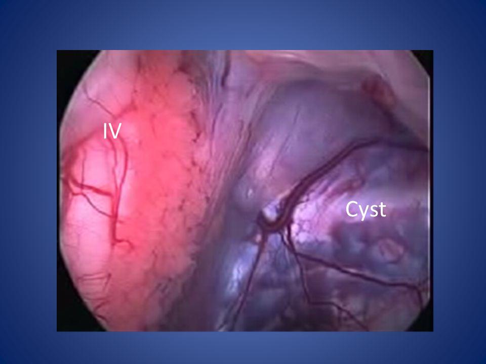 IV Cyst