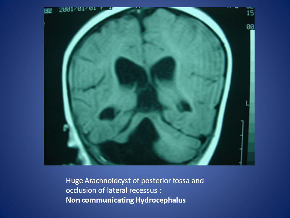 Non communicating Hydrocephalus