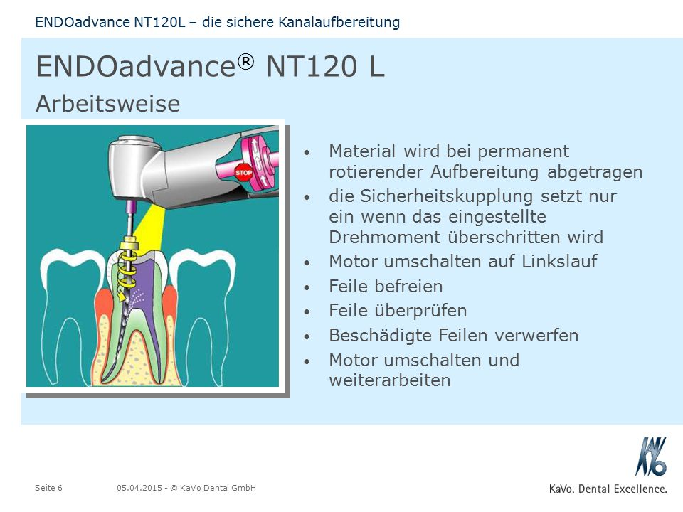 ENDOadvance® NT120 L Arbeitsweise