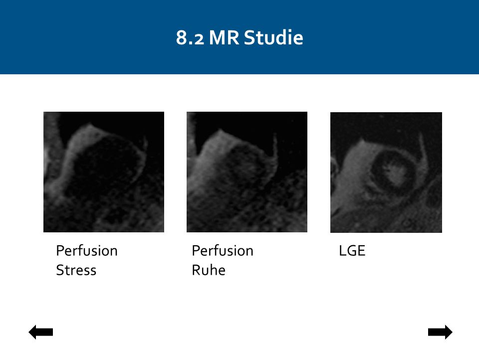 8.2 MR Studie Perfusion Stress Perfusion Ruhe LGE