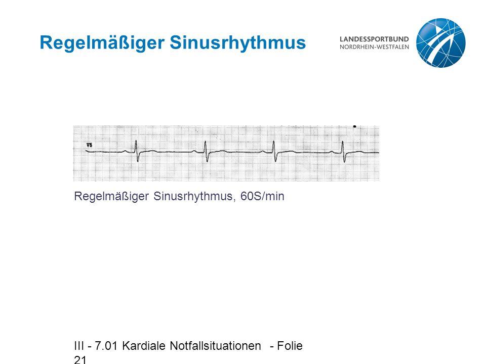 Regelmäßiger Sinusrhythmus