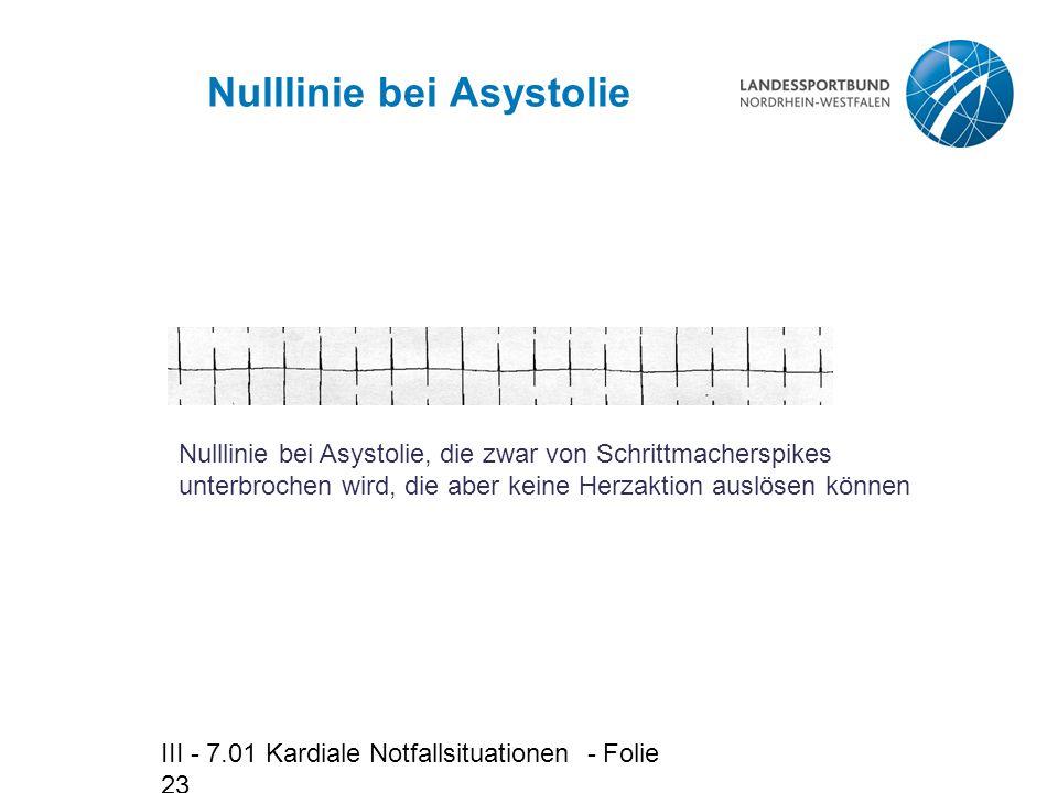Nulllinie bei Asystolie