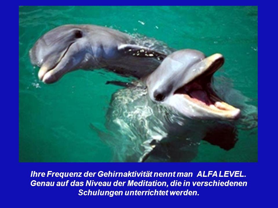 Ihre Frequenz der Gehirnaktivität nennt man ALFA LEVEL.