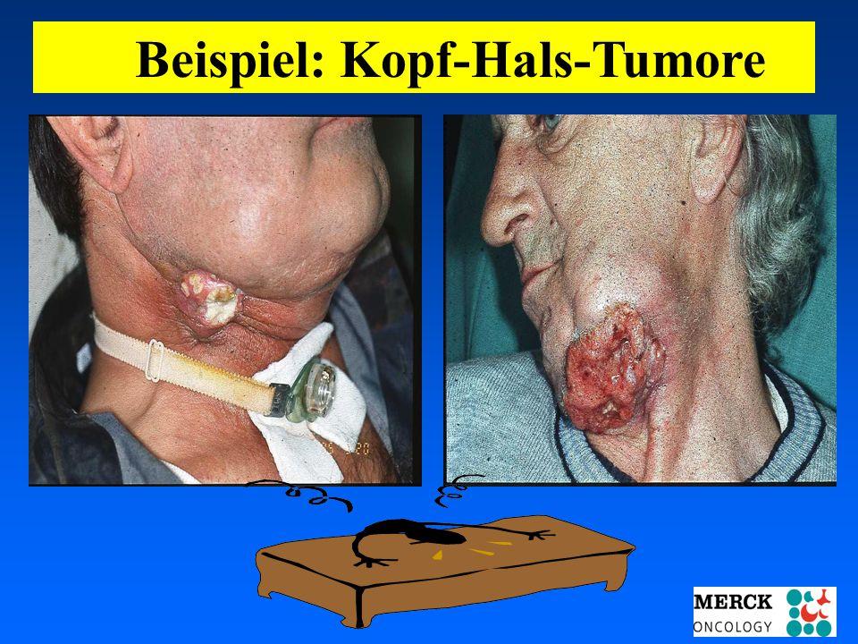 Beispiel: Kopf-Hals-Tumore