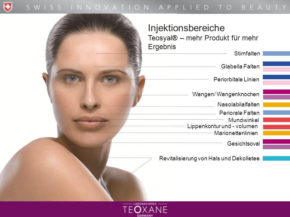 Injektionsbereiche Teosyal® – mehr Produkt für mehr Ergebnis