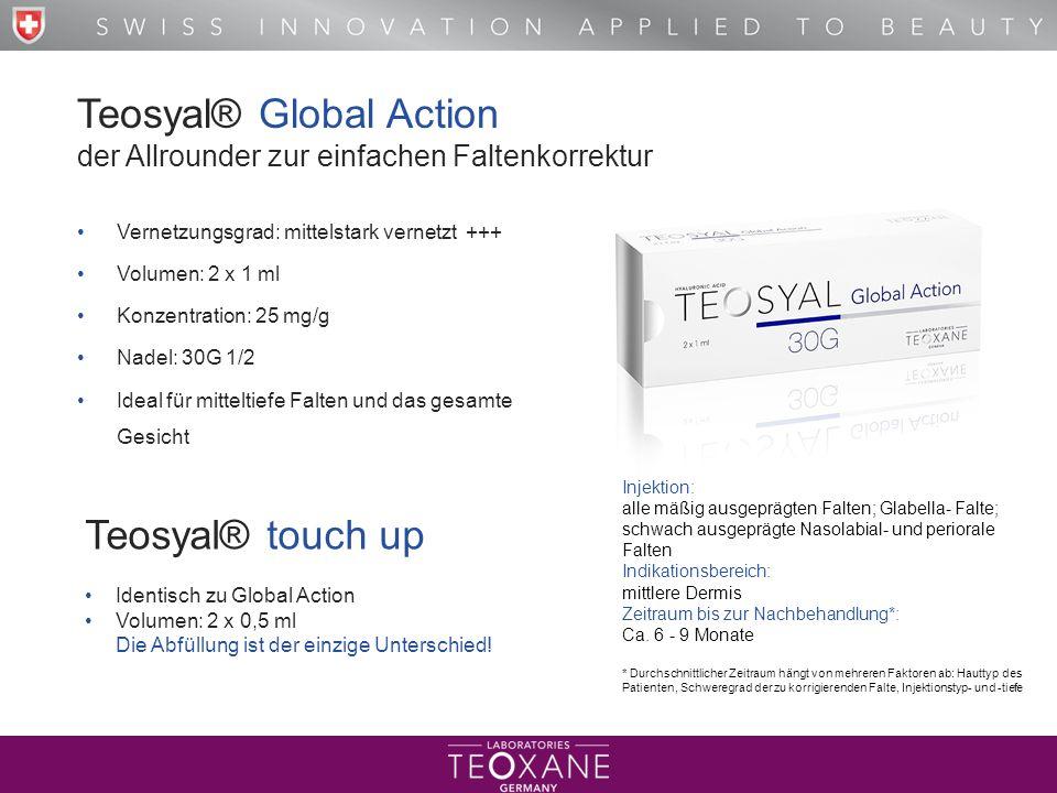 Teosyal® Global Action der Allrounder zur einfachen Faltenkorrektur