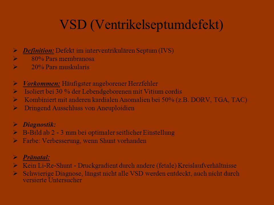 VSD (Ventrikelseptumdefekt)