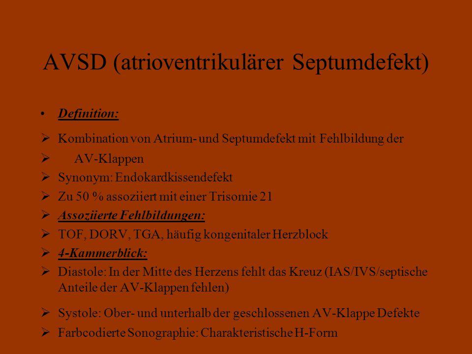 AVSD (atrioventrikulärer Septumdefekt)