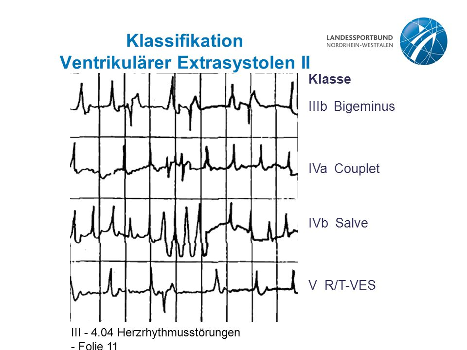 Klassifikation Ventrikulärer Extrasystolen II