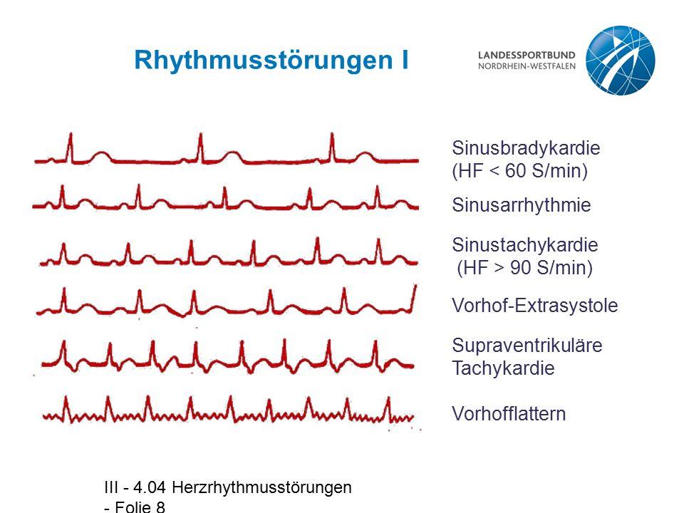Rhythmusstörungen I Sinusbradykardie (HF < 60 S/min)