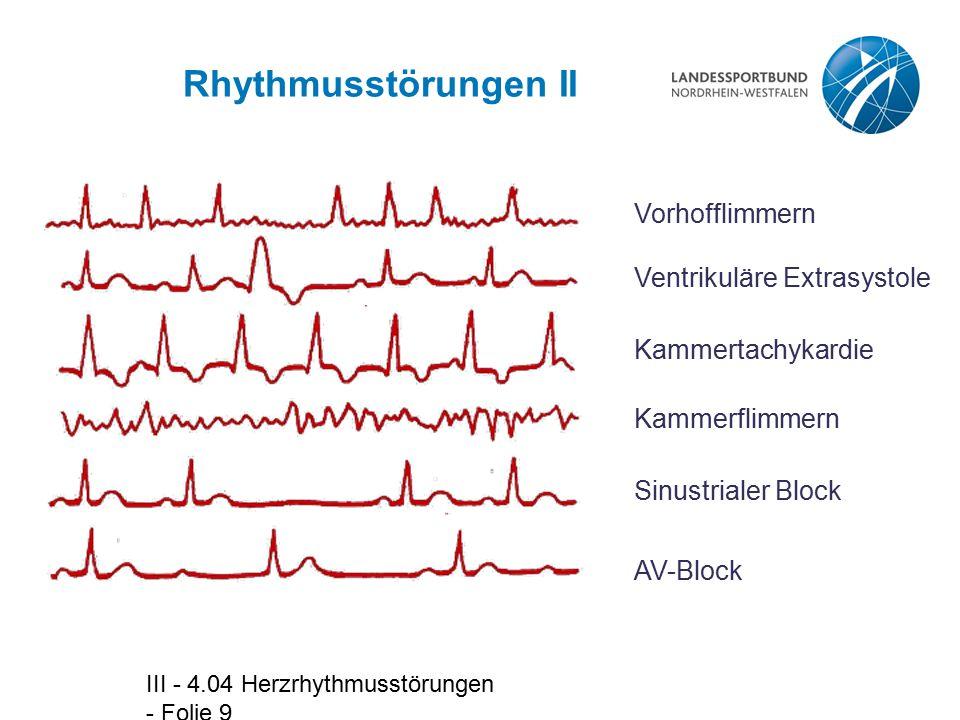 Rhythmusstörungen II Vorhofflimmern Ventrikuläre Extrasystole