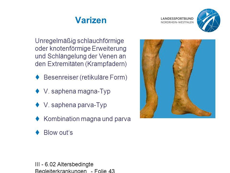 Varizen Unregelmäßig schlauchförmige oder knotenförmige Erweiterung und Schlängelung der Venen an den Extremitäten (Krampfadern)