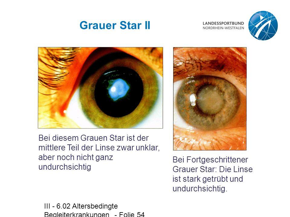 Grauer Star II Bei diesem Grauen Star ist der mittlere Teil der Linse zwar unklar, aber noch nicht ganz undurchsichtig.