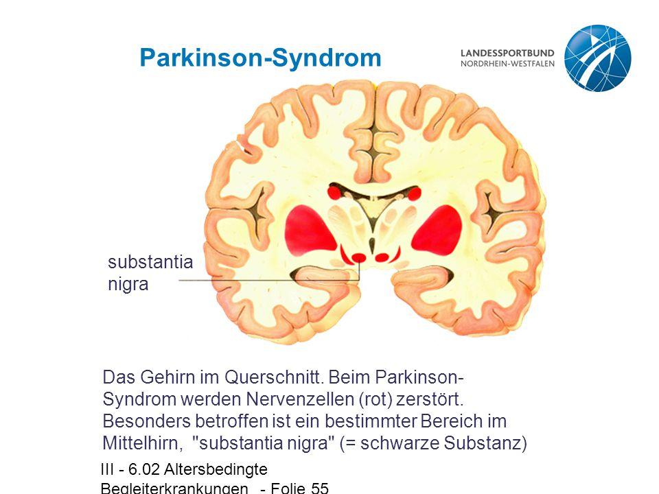 Parkinson-Syndrom substantia nigra