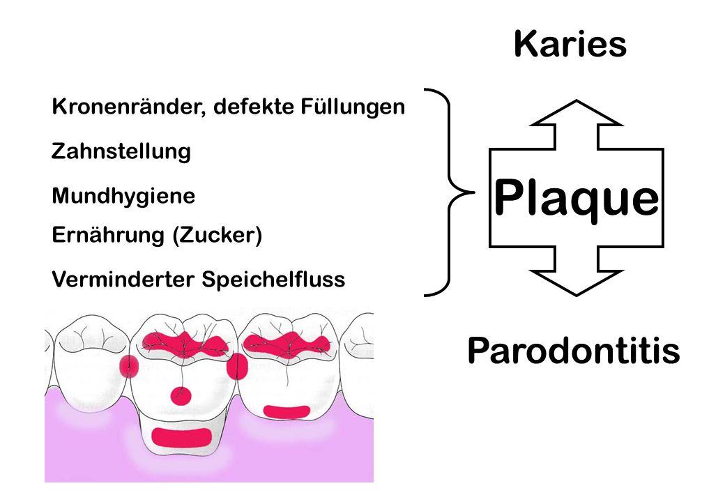Plaque Karies Parodontitis Kronenränder, defekte Füllungen