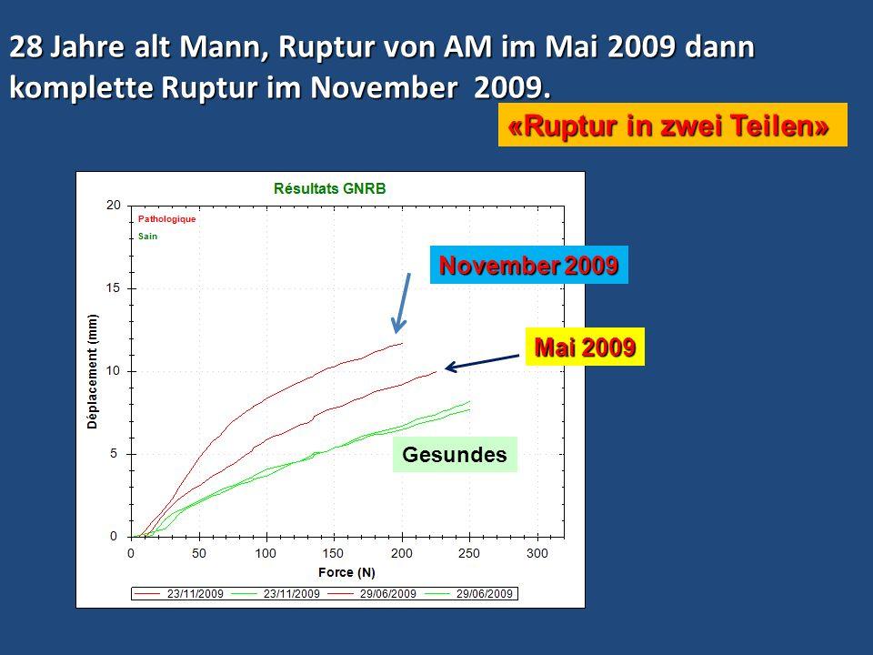 28 Jahre alt Mann, Ruptur von AM im Mai 2009 dann komplette Ruptur im November 2009.