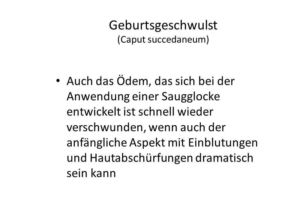 Geburtsgeschwulst (Caput succedaneum)