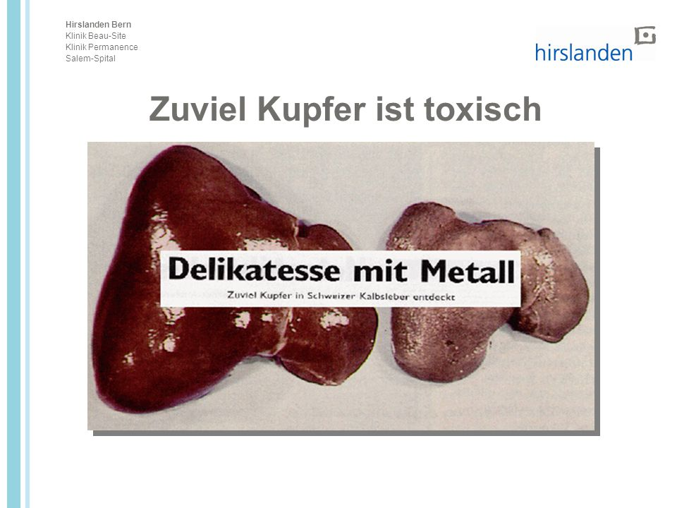 Zuviel Kupfer ist toxisch