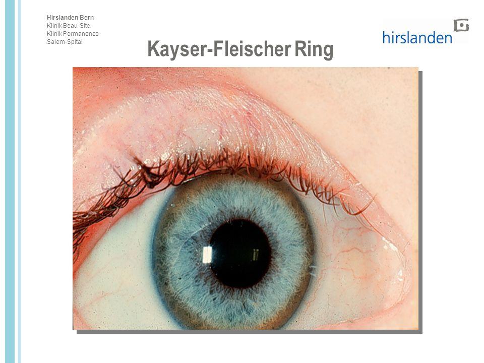 Kayser-Fleischer Ring