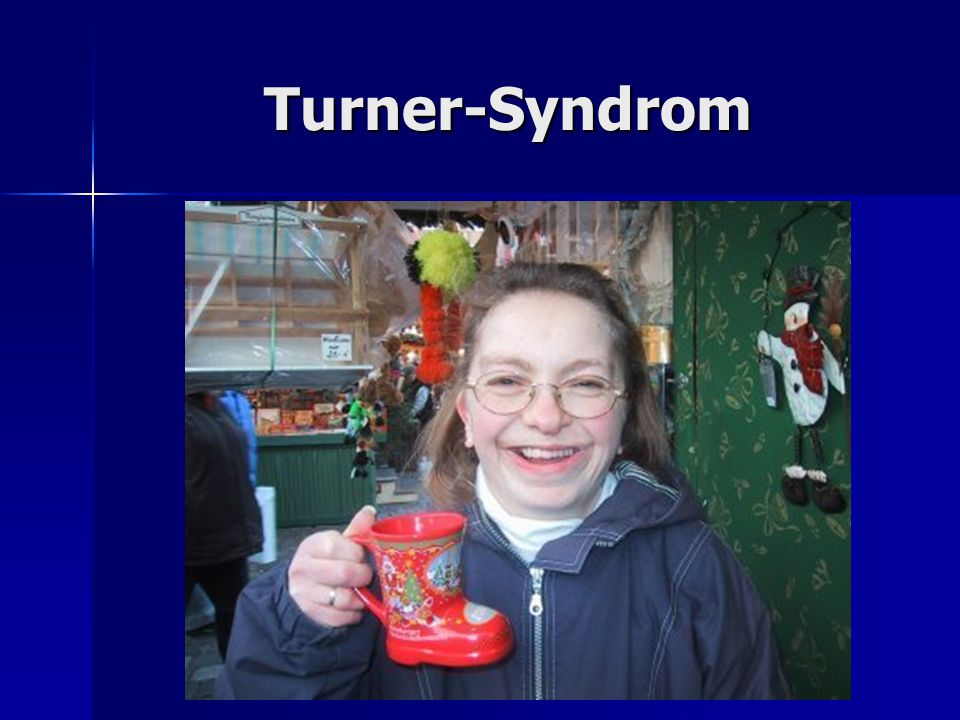 Turner-Syndrom