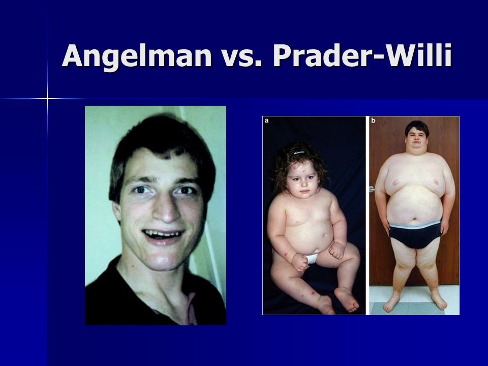Angelman vs. Prader-Willi