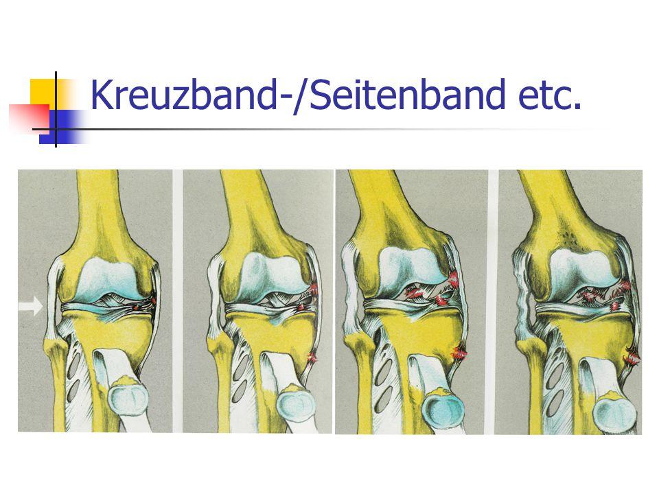 Kreuzband-/Seitenband etc.