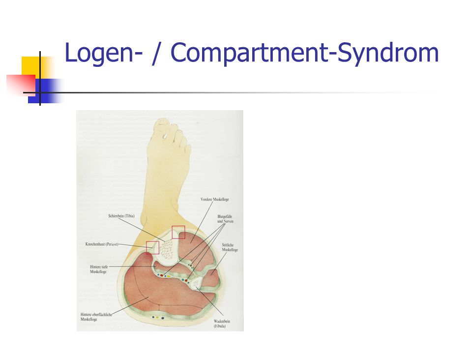 Logen- / Compartment-Syndrom