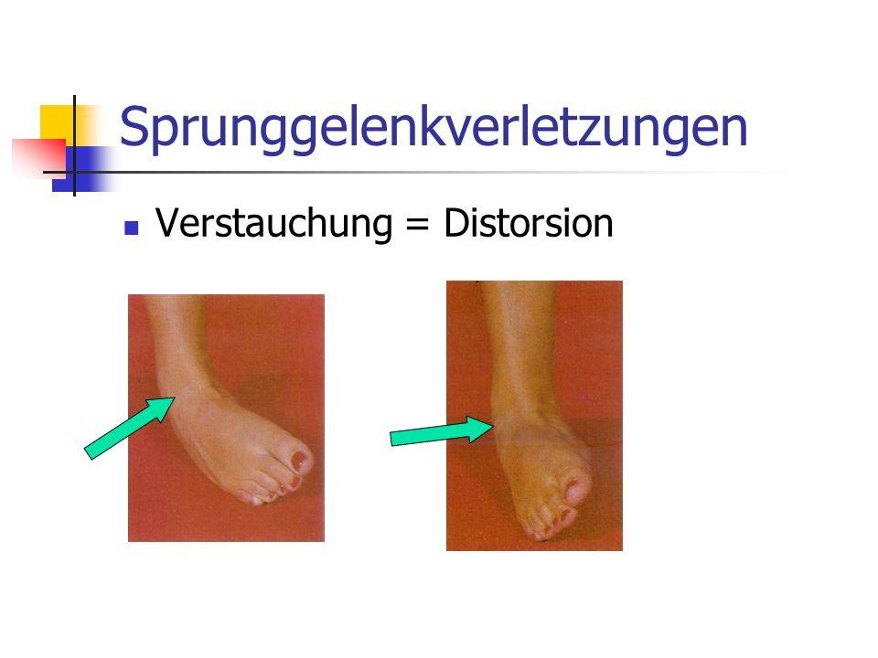 Sprunggelenkverletzungen