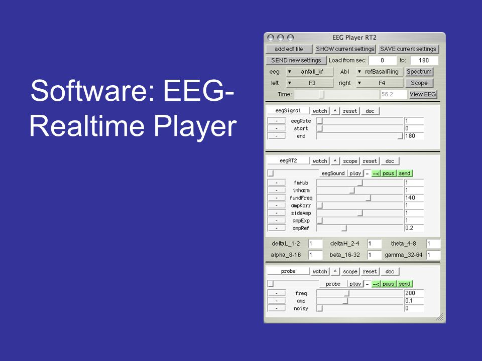 Software: EEG- Realtime Player