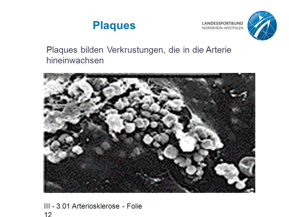 Plaques Plaques bilden Verkrustungen, die in die Arterie hineinwachsen