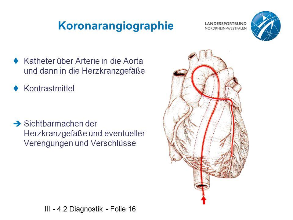 Koronarangiographie Katheter über Arterie in die Aorta und dann in die Herzkranzgefäße. Kontrastmittel.