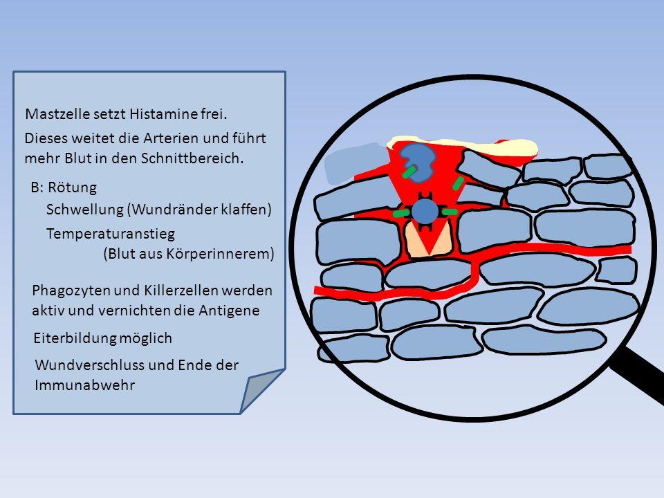 Mastzelle setzt Histamine frei.