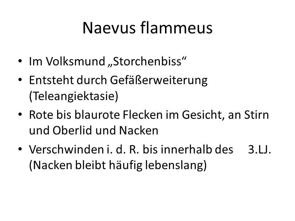 """Naevus flammeus Im Volksmund """"Storchenbiss"""